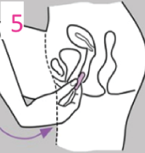 vaginal suppository insertion directions